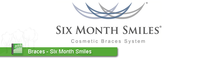 Six Month Smiles aberdeen