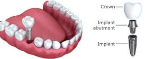 Implant Dentist Aberdeen