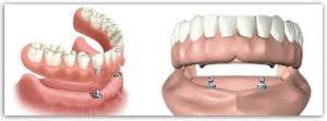 Implant Retained Dentures Aberdeen